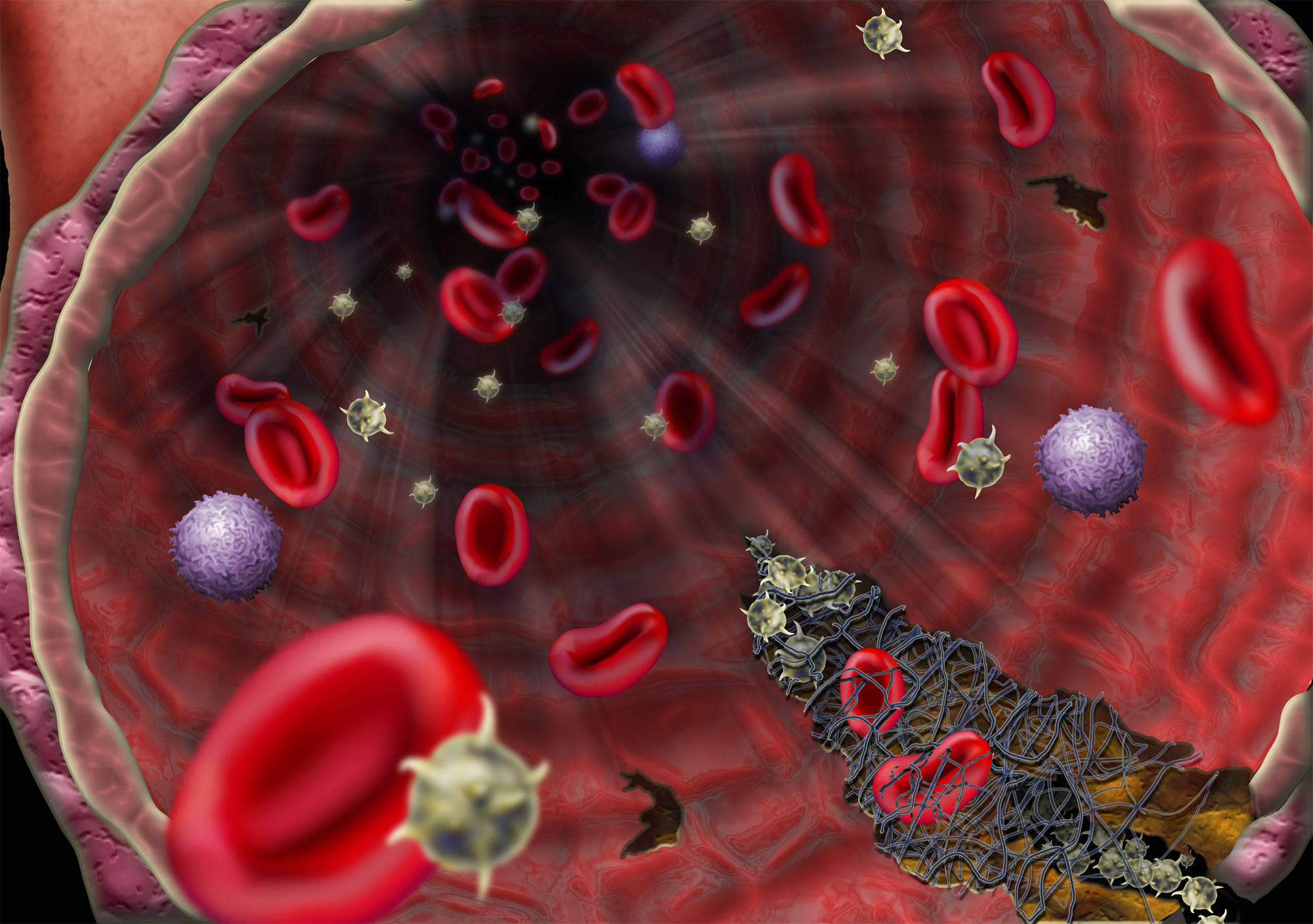 blood_clotting_h1